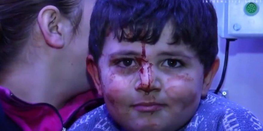 Ermenistanın saldırısı sonucu enkazdan çıkarılan çocuklar