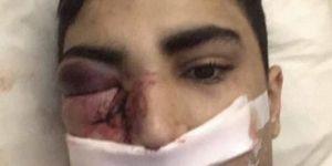 8 Fransız polisinin öldüresiye dövdüğü Mehdi adlı genç bir gözünü kaybetti