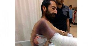 Diyarbakır'da yaşanan şok olay ! Taş attığı yılan adamı ısırdı