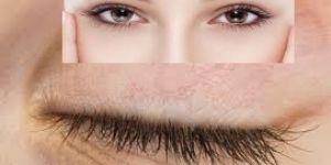 Göz kapaklarındaki sarkma kişinin gözlerinin ve göz kapaklarının daha erken yorulmasına neden