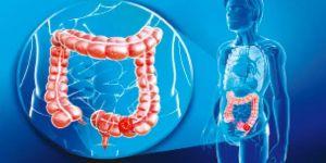 Dünyada her yıl 609 bin kişi kolon kanserinden hayatını kaybediyor