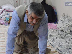 45 yıl kullandığı sigara yüzünden 2 bacağını kaybetti